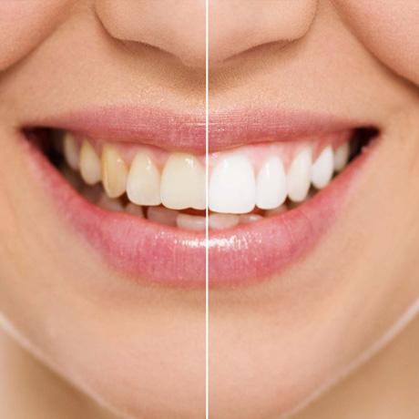 Mondzorg Dental Beauty Den Haag - Bleken