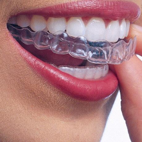 Mondzorg Dental Beauty Den Haag - Composiet facings
