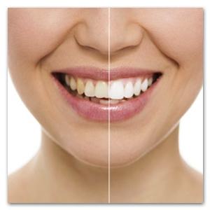 Witte tanden actie bij Mondzorg Dental Beauty