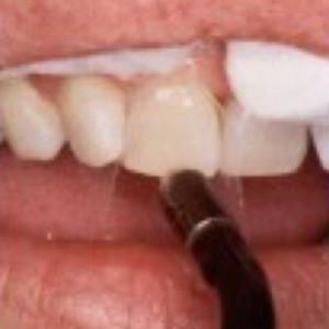 Mondzorg Dental Beauty / Composiet facings
