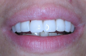 Mondzorg Dental Beauty / Paradontale behandelingen