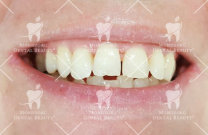 Mondzorg Dental Beauty / composiet facings
