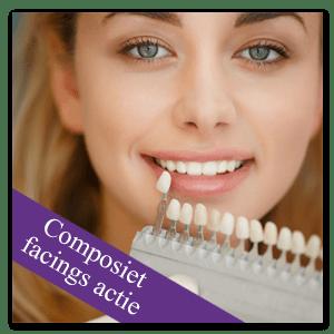 Composiet Facings actie Mondzorg Dental Beauty Den haag