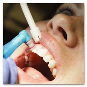 tanden polijsten