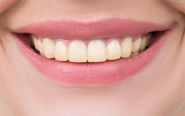 Tanden bleken Den Haag